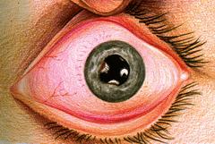Iridocyclite : pupille déformée et œil rouge
